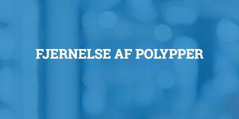 Fjernelse af polypper